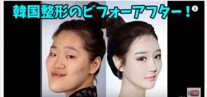 韓国整形関連バナー