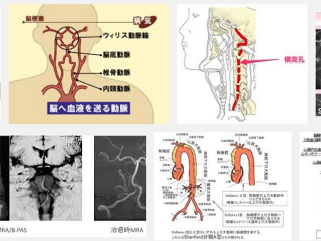 脊椎動脈解離